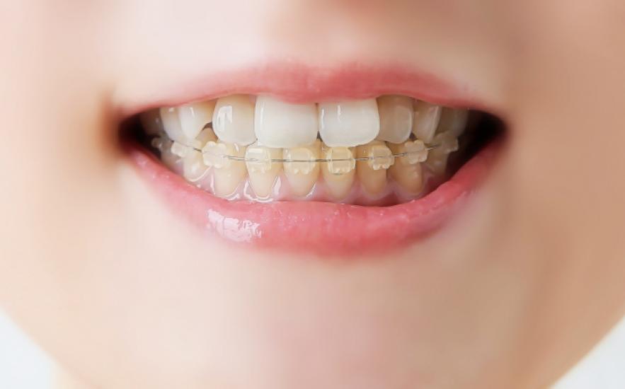 いわき 矯正歯科