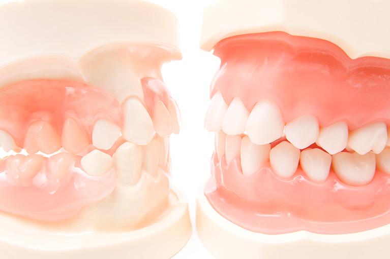 全顎的治療を実施