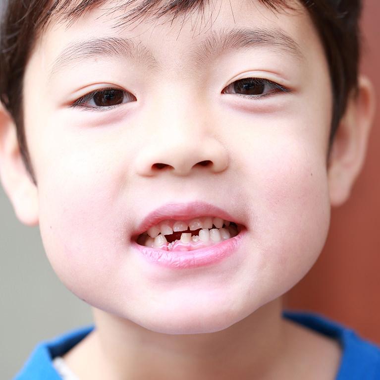 歯が生えてきたら歯医者さんへ