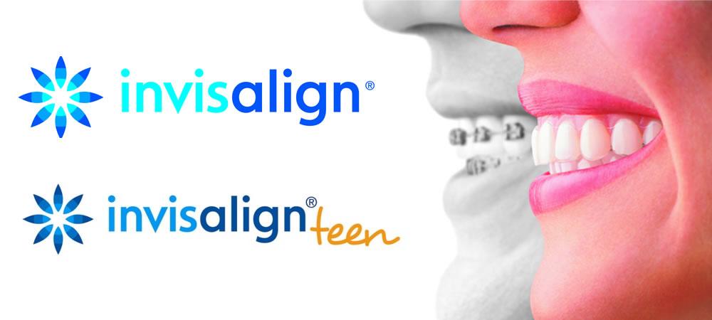 目立たず、取り外せて、痛くない。金属アレルギーの方でも安心して装着できる矯正歯科